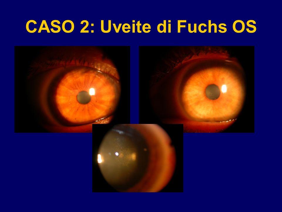 CASO 2: Uveite di Fuchs OS