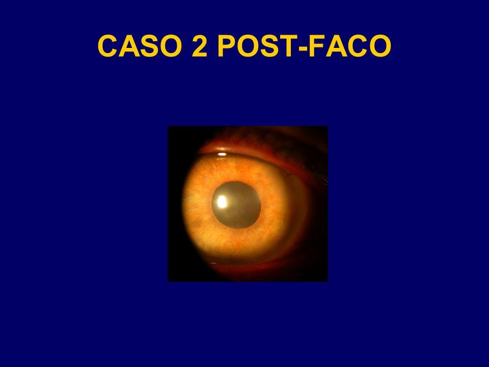 CASO 2 POST-FACO