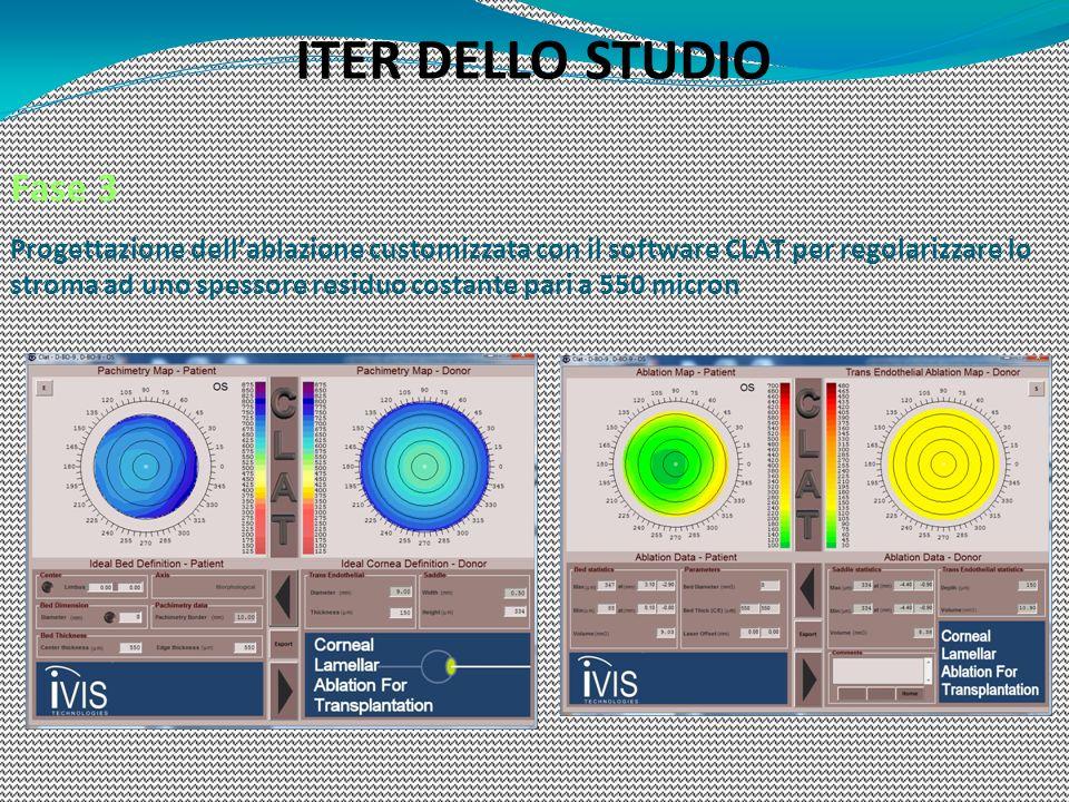 Fase 3 Progettazione dellablazione customizzata con il software CLAT per regolarizzare lo stroma ad uno spessore residuo costante pari a 550 micron IT