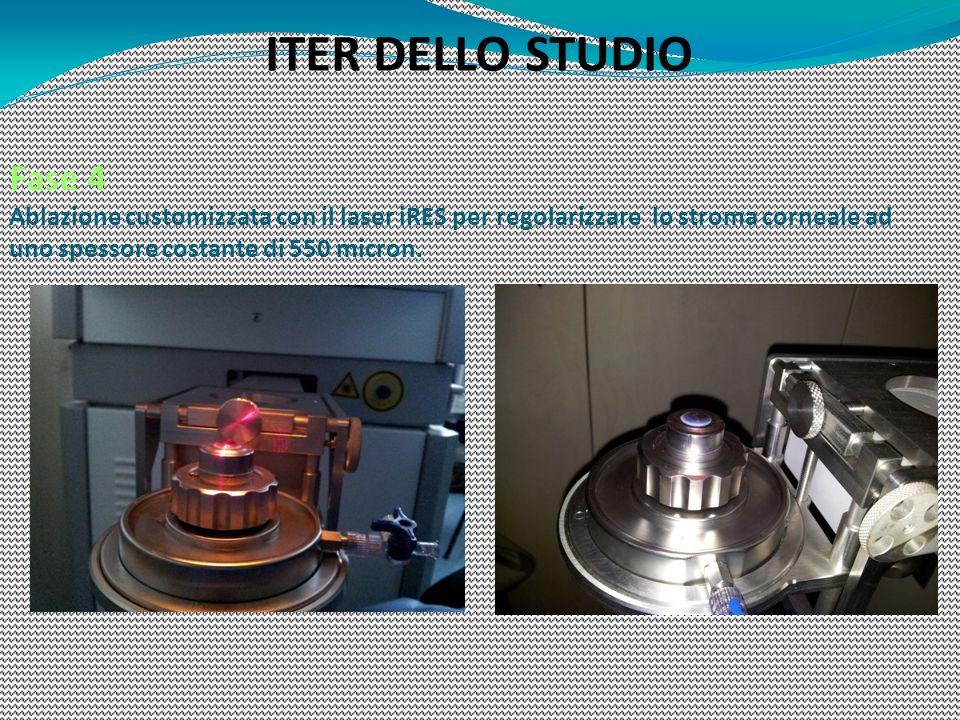 Fase 4 Ablazione customizzata con il laser iRES per regolarizzare lo stroma corneale ad uno spessore costante di 550 micron. ITER DELLO STUDIO