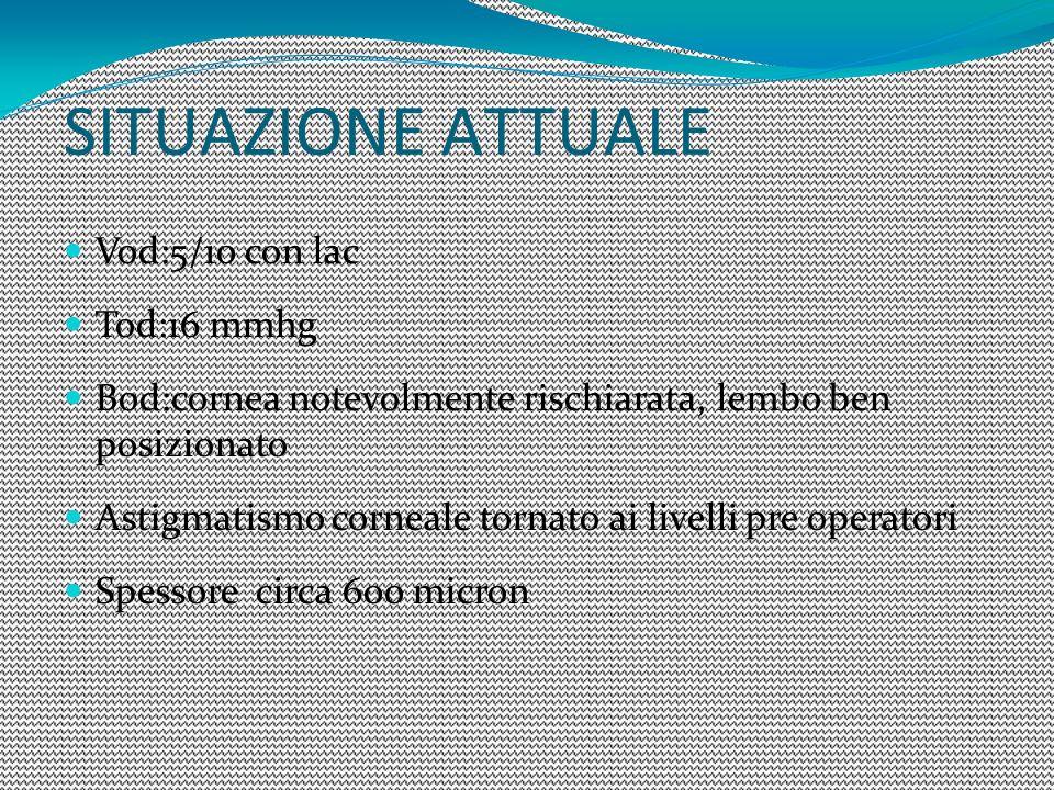 Vod:5/10 con lac Tod:16 mmhg Bod:cornea notevolmente rischiarata, lembo ben posizionato Astigmatismo corneale tornato ai livelli pre operatori Spessor