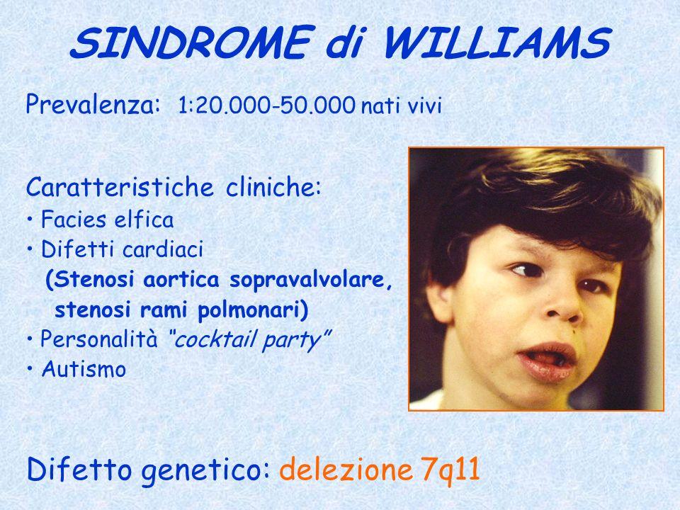 SINDROME di WILLIAMS Prevalenza: 1:20.000-50.000 nati vivi Difetto genetico: delezione 7q11 Caratteristiche cliniche: Facies elfica Difetti cardiaci (