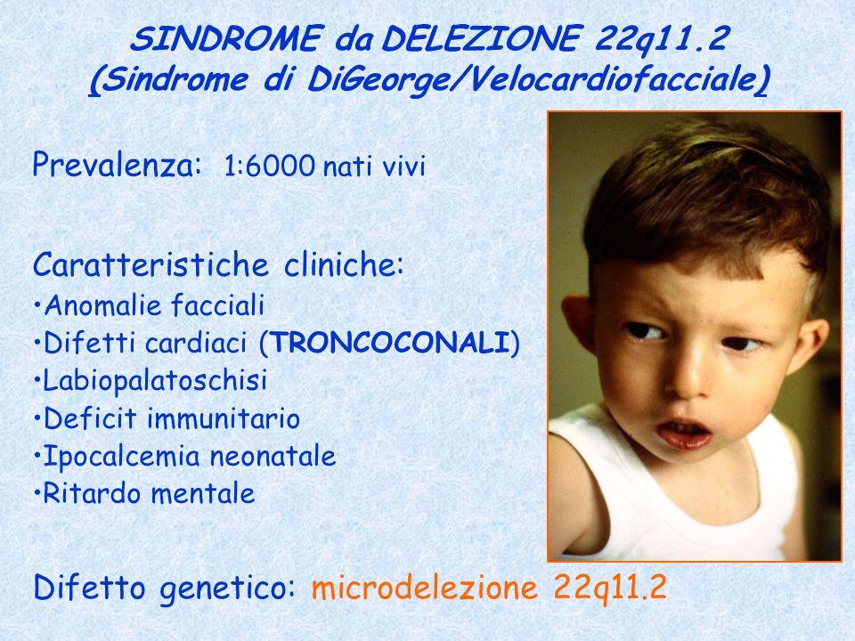 SINDROME da DELEZIONE 22q11.2 (Sindrome di DiGeorge/Velocardiofacciale) Prevalenza: 1:6000 nati vivi Caratteristiche cliniche: Anomalie facciali Difet