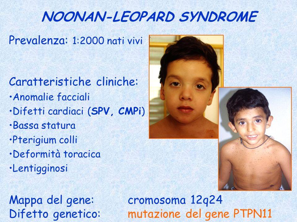 NOONAN-LEOPARD SYNDROME Prevalenza: 1:2000 nati vivi Caratteristiche cliniche: Anomalie facciali Difetti cardiaci (SPV, CMPi) Bassa statura Pterigium