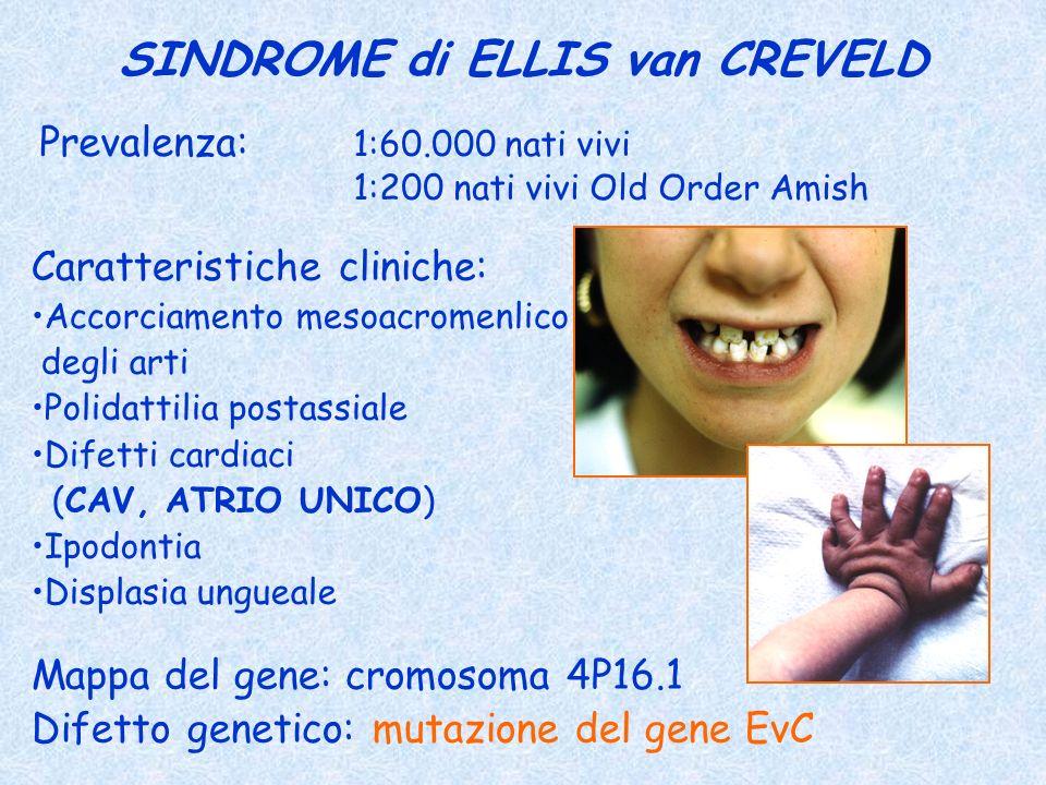 SINDROME di ELLIS van CREVELD Prevalenza: 1:60.000 nati vivi 1:200 nati vivi Old Order Amish Caratteristiche cliniche: Accorciamento mesoacromenlico d