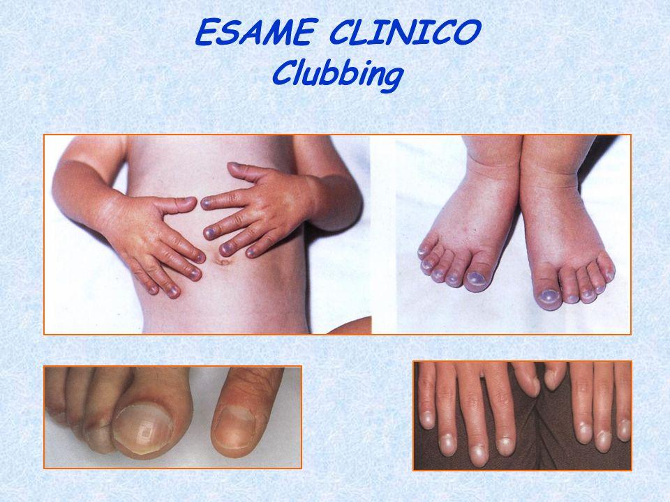 ESAME CLINICO Clubbing