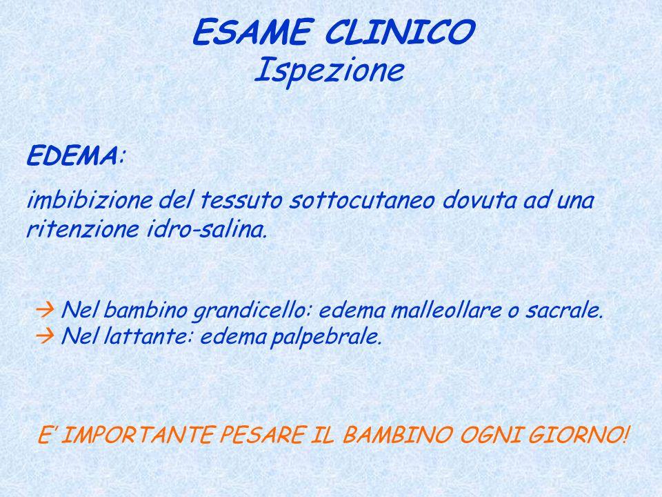 ESAME CLINICO EDEMA: imbibizione del tessuto sottocutaneo dovuta ad una ritenzione idro-salina. Ispezione E IMPORTANTE PESARE IL BAMBINO OGNI GIORNO!