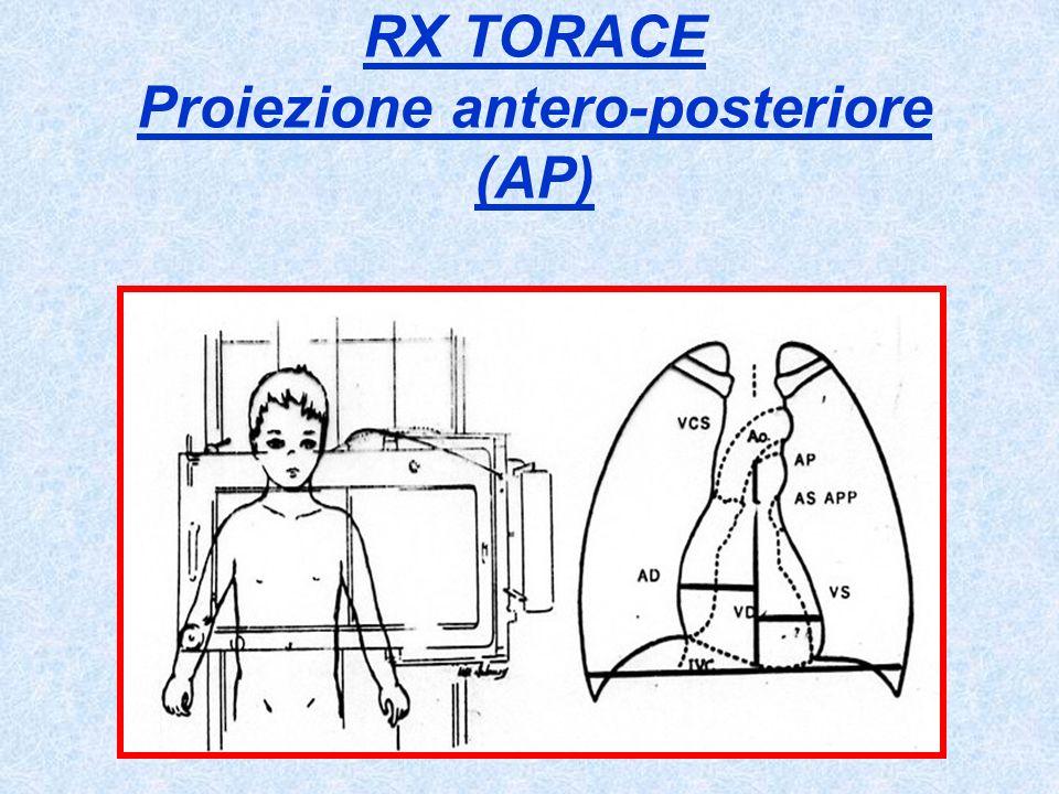 RX TORACE Proiezione antero-posteriore (AP)