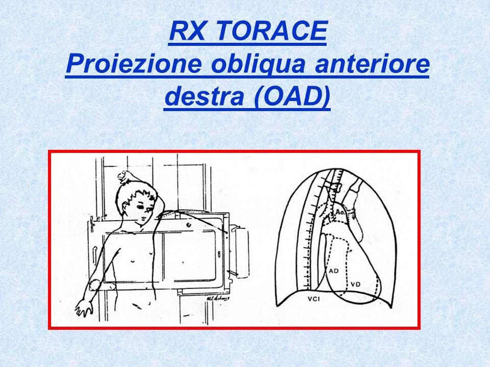 RX TORACE Proiezione obliqua anteriore destra (OAD)