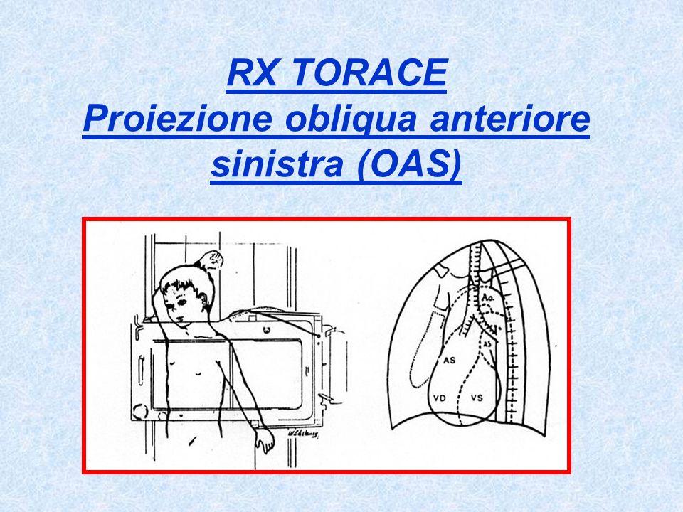 RX TORACE Proiezione obliqua anteriore sinistra (OAS)