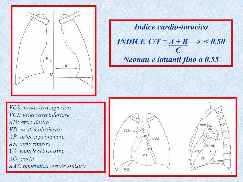 Indice cardio-toracico INDICE C/T = A + B < 0.50 C Neonati e lattanti fino a 0.55 VCS: vena cava superiore VCI: vena cava inferiore AD: atrio destro V