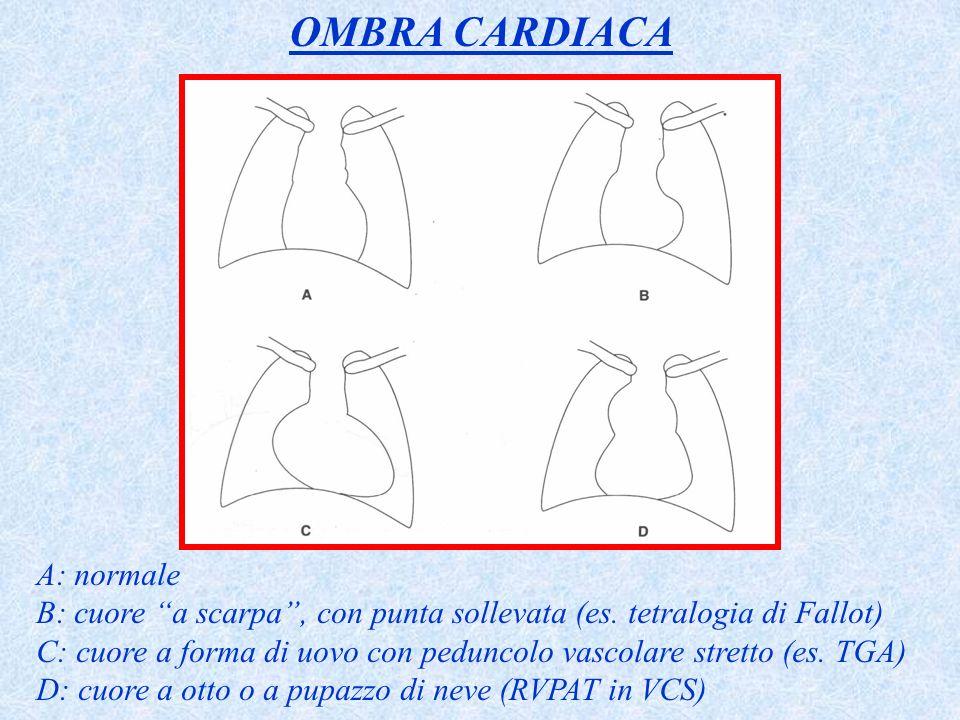 A: normale B: cuore a scarpa, con punta sollevata (es. tetralogia di Fallot) C: cuore a forma di uovo con peduncolo vascolare stretto (es. TGA) D: cuo