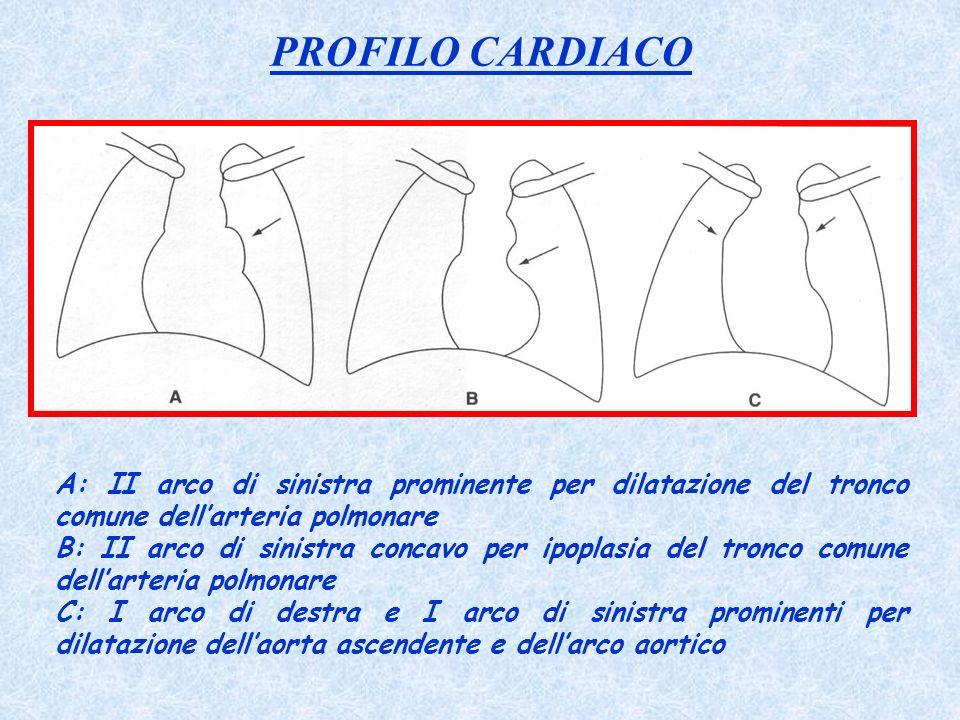 PROFILO CARDIACO A: II arco di sinistra prominente per dilatazione del tronco comune dellarteria polmonare B: II arco di sinistra concavo per ipoplasi