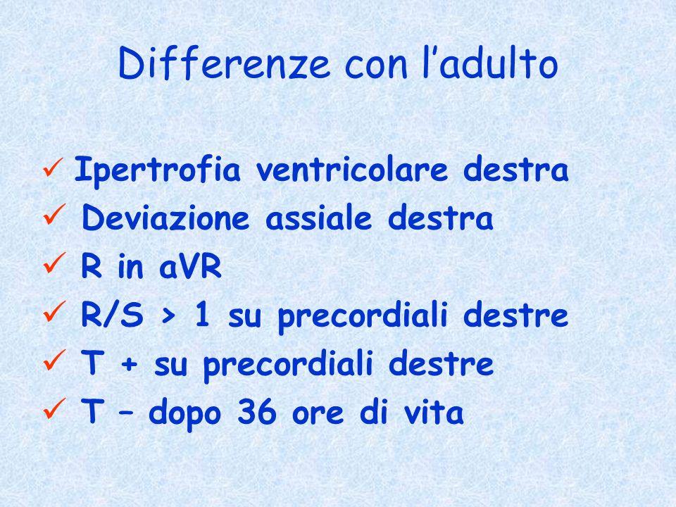 Differenze con ladulto Ipertrofia ventricolare destra Deviazione assiale destra R in aVR R/S > 1 su precordiali destre T + su precordiali destre T – d