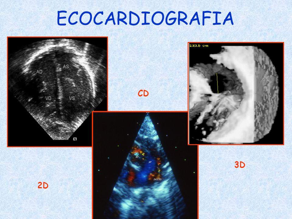 ECOCARDIOGRAFIA 2D CD 3D