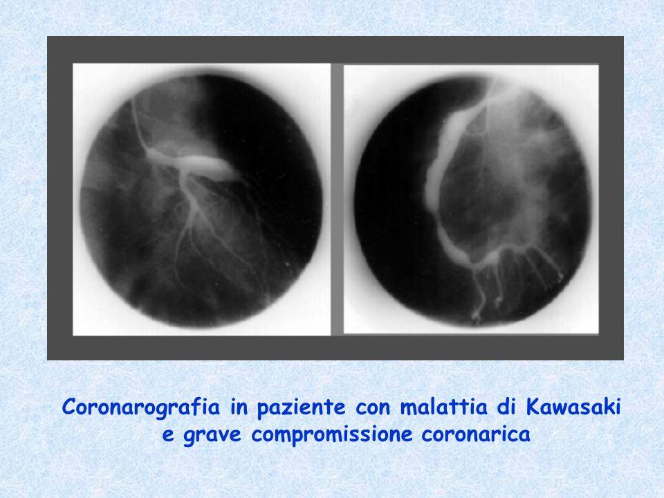 Coronarografia in paziente con malattia di Kawasaki e grave compromissione coronarica