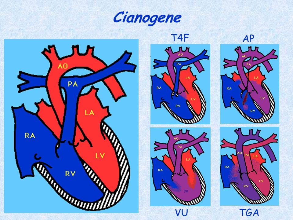 Cianogene T4F AP VUTGA