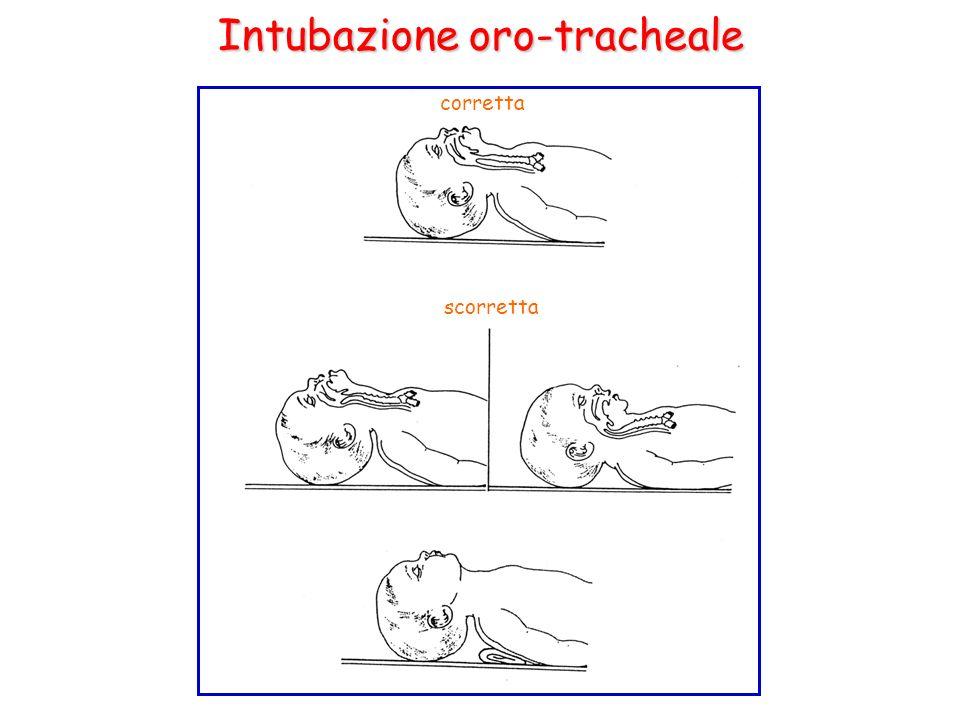 Intubazione oro-tracheale corretta scorretta