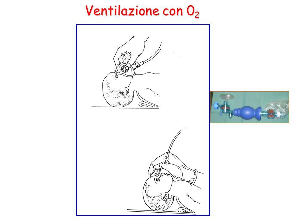 Ventilazione con 0 2