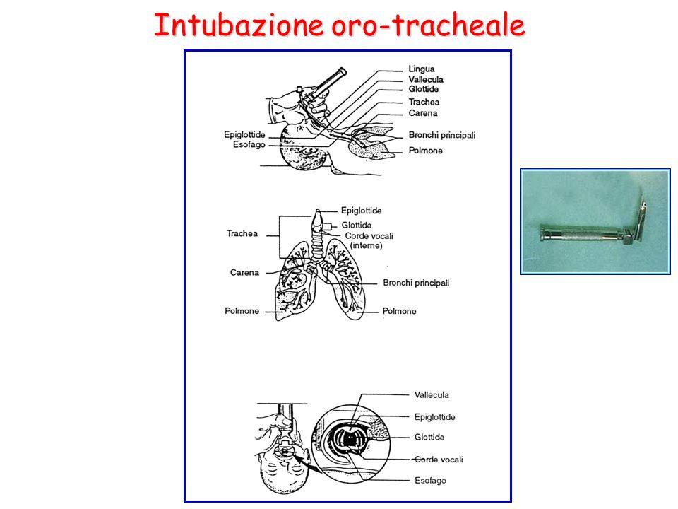 Intubazione oro-tracheale