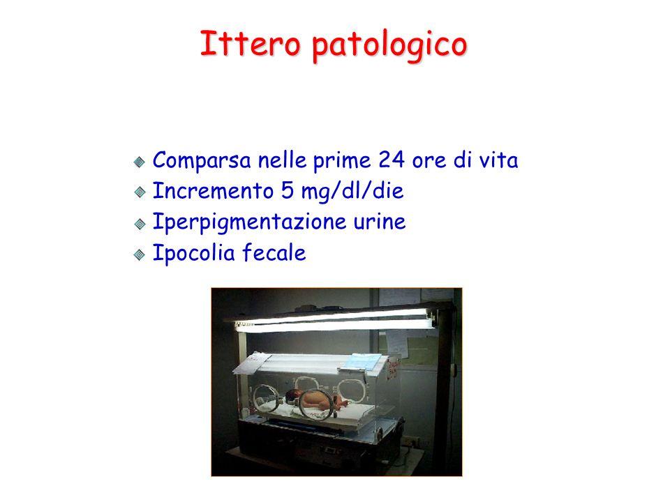 Ittero patologico Comparsa nelle prime 24 ore di vita Incremento 5 mg/dl/die Iperpigmentazione urine Ipocolia fecale