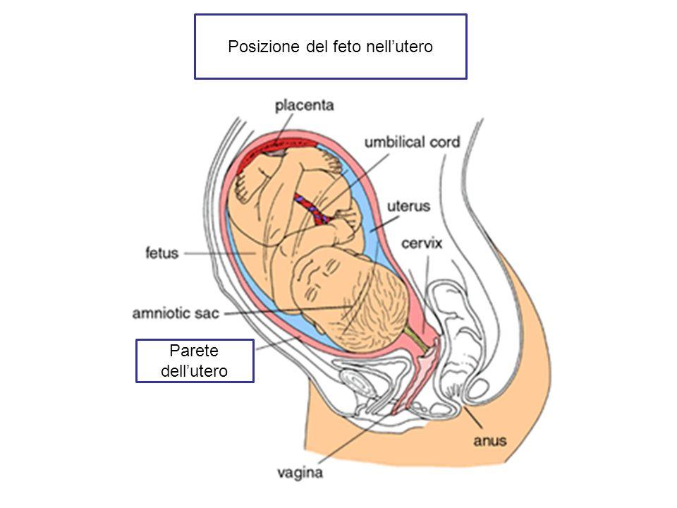 Posizione del feto nellutero Parete dellutero