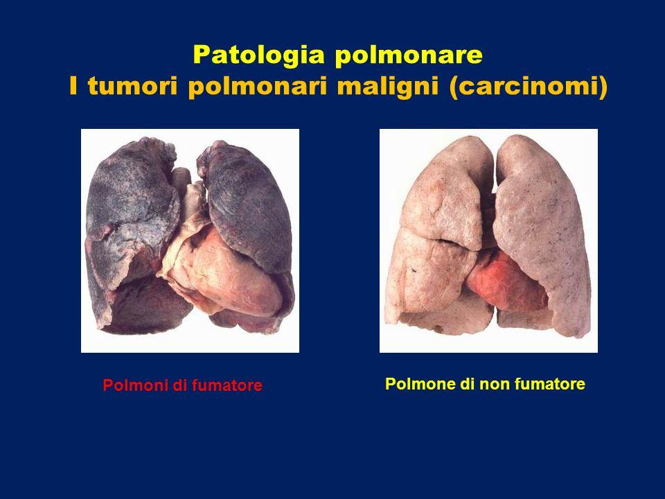 Polmoni di fumatore Polmone di non fumatore