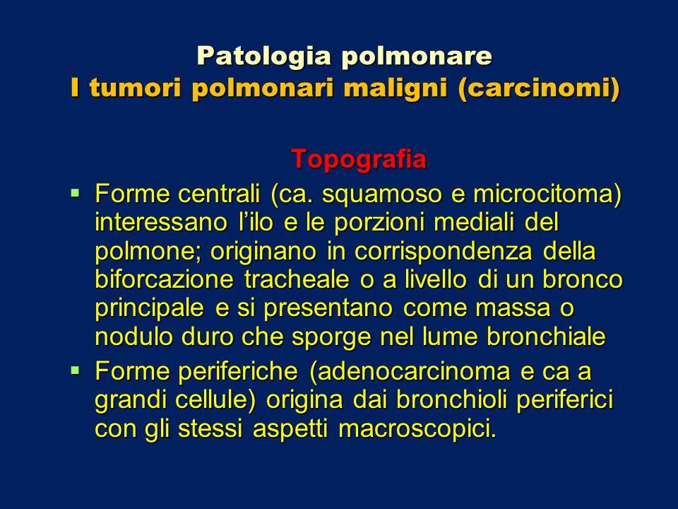 Patologia polmonare I tumori polmonari maligni (carcinomi) Topografia Forme centrali (ca. squamoso e microcitoma) interessano lilo e le porzioni media