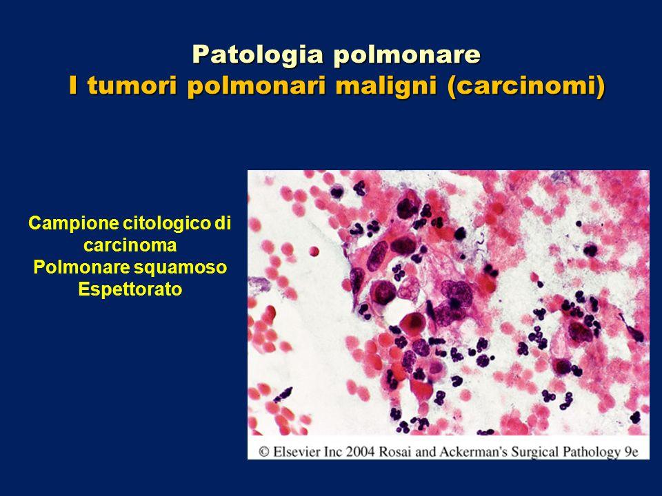 Patologia polmonare I tumori polmonari maligni (carcinomi) Campione citologico di carcinoma Polmonare squamoso Espettorato