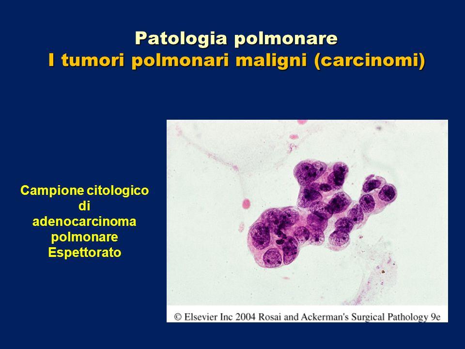 Patologia polmonare I tumori polmonari maligni (carcinomi) Campione citologico di adenocarcinoma polmonare Espettorato