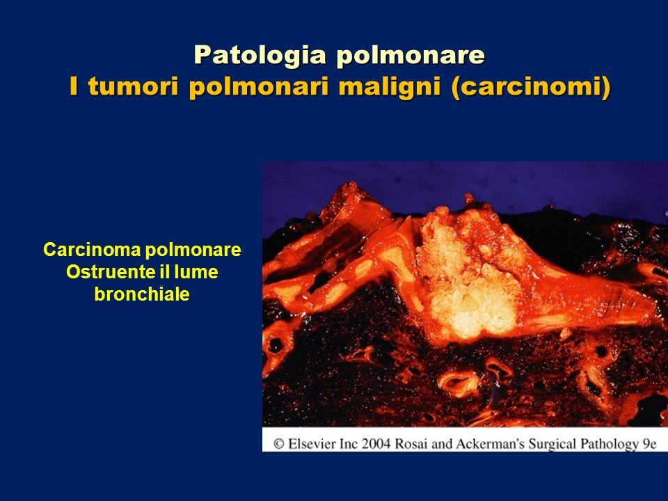 Patologia polmonare I tumori polmonari maligni (carcinomi) Carcinoma polmonare Ostruente il lume bronchiale