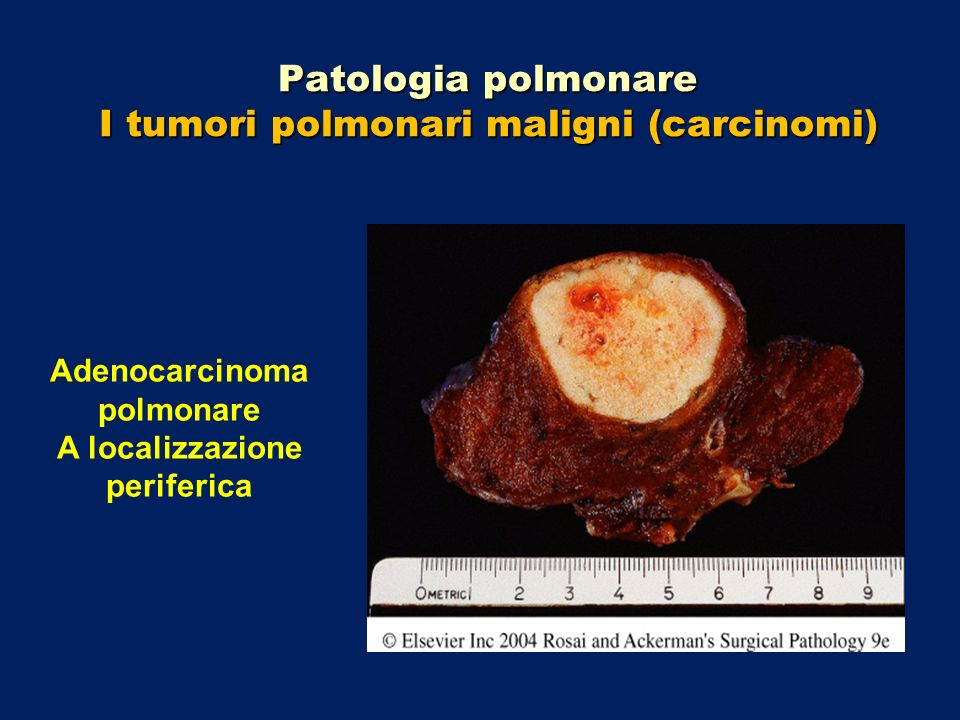Patologia polmonare I tumori polmonari maligni (carcinomi) Adenocarcinoma polmonare A localizzazione periferica