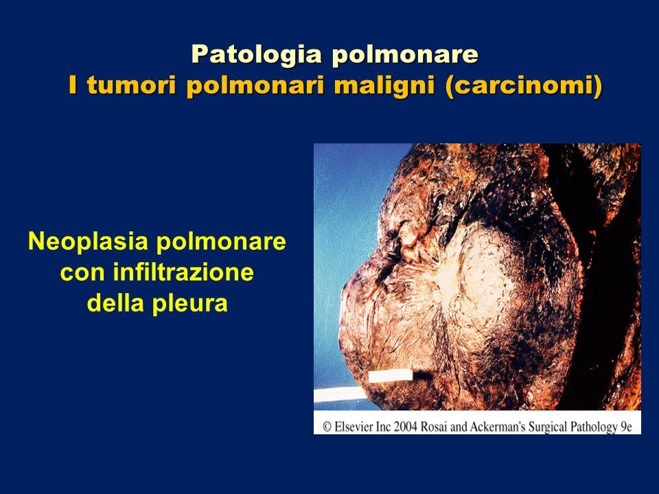 Patologia polmonare I tumori polmonari maligni (carcinomi) Neoplasia polmonare con infiltrazione della pleura