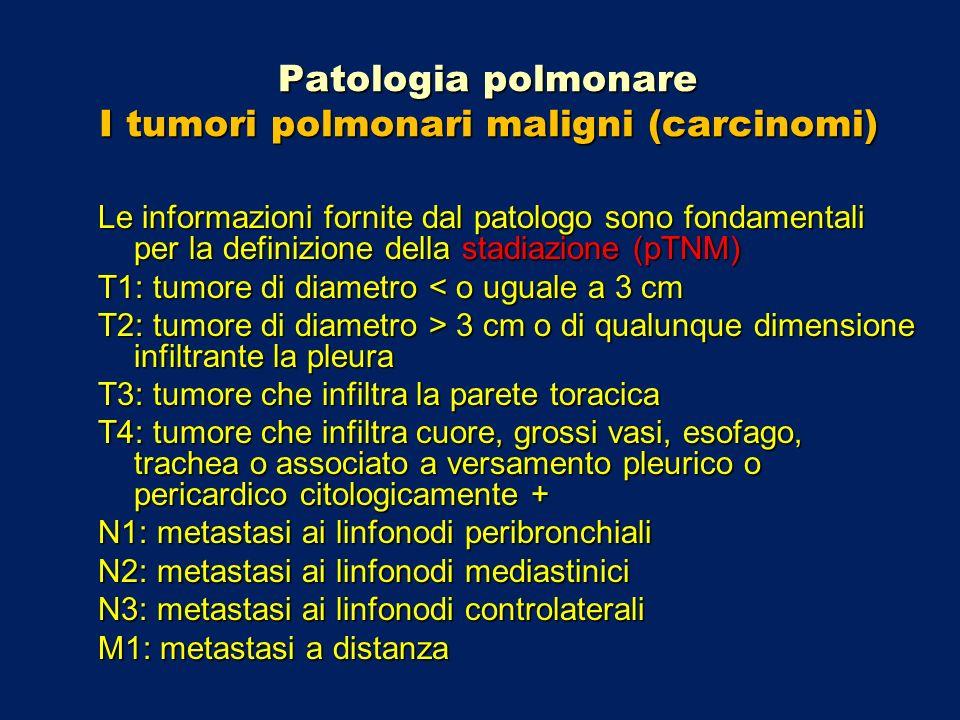 Patologia polmonare I tumori polmonari maligni (carcinomi) Le informazioni fornite dal patologo sono fondamentali per la definizione della stadiazione