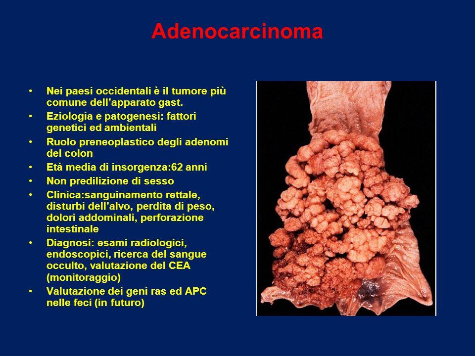 Adenocarcinoma Nei paesi occidentali è il tumore più comune dellapparato gast. Eziologia e patogenesi: fattori genetici ed ambientali Ruolo preneoplas