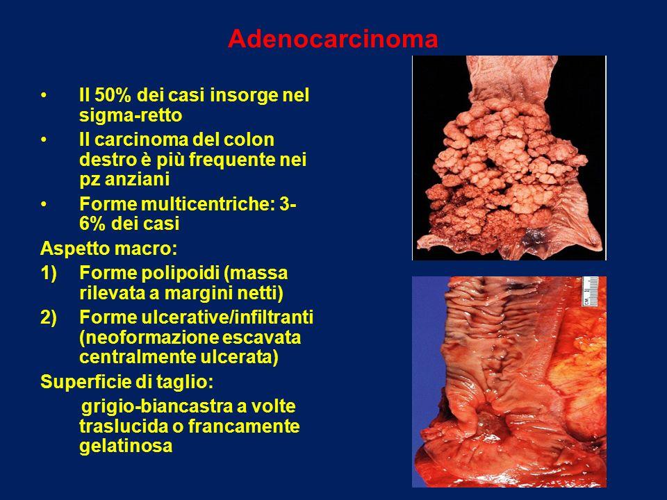 Adenocarcinoma Il 50% dei casi insorge nel sigma-retto Il carcinoma del colon destro è più frequente nei pz anziani Forme multicentriche: 3- 6% dei ca