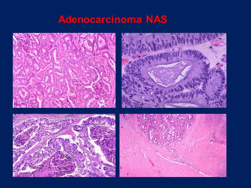 Adenocarcinoma NAS