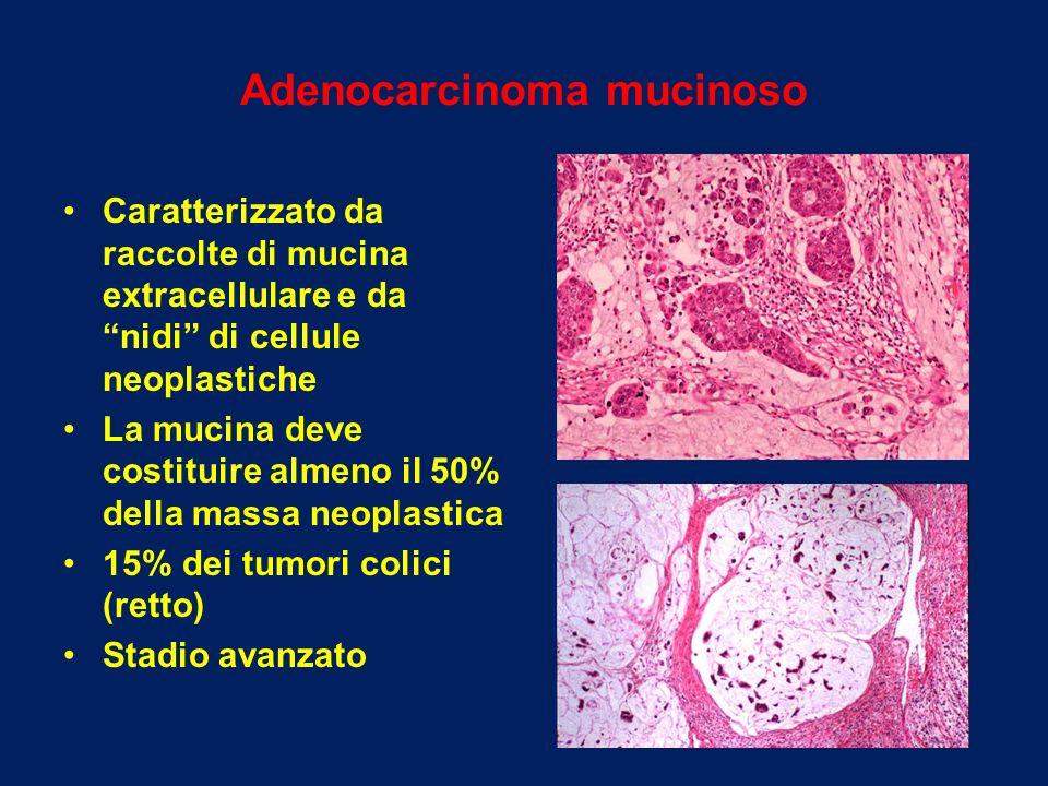 Adenocarcinoma mucinoso Caratterizzato da raccolte di mucina extracellulare e da nidi di cellule neoplastiche La mucina deve costituire almeno il 50%
