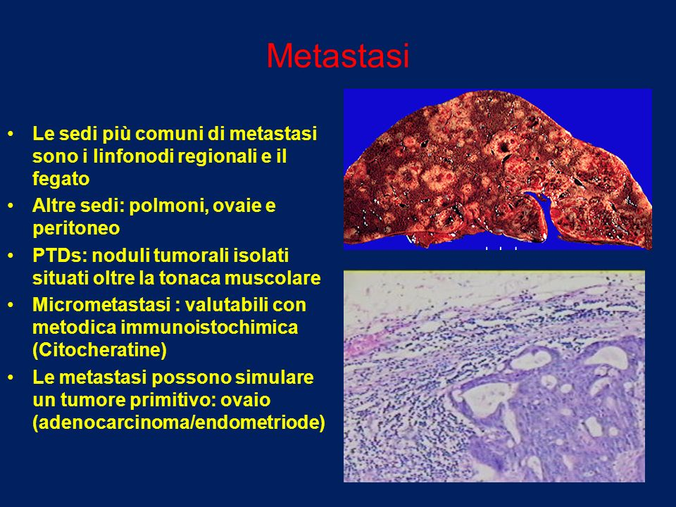 Metastasi Le sedi più comuni di metastasi sono i linfonodi regionali e il fegato Altre sedi: polmoni, ovaie e peritoneo PTDs: noduli tumorali isolati