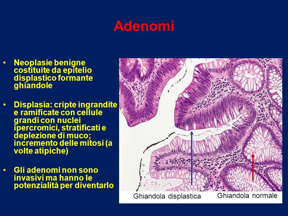 Adenomi Neoplasie benigne costituite da epitelio displastico formante ghiandole Displasia: cripte ingrandite e ramificate con cellule grandi con nucle