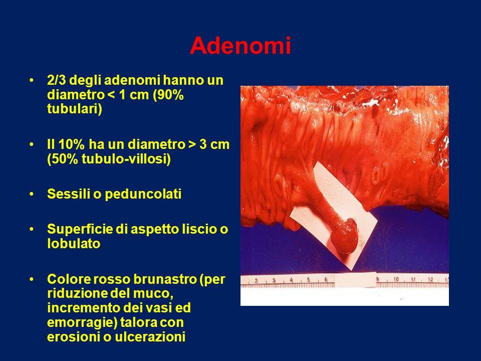 Adenomi 2/3 degli adenomi hanno un diametro < 1 cm (90% tubulari) Il 10% ha un diametro > 3 cm (50% tubulo-villosi) Sessili o peduncolati Superficie d
