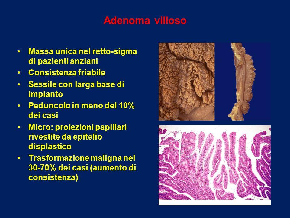 Adenoma villoso Massa unica nel retto-sigma di pazienti anziani Consistenza friabile Sessile con larga base di impianto Peduncolo in meno del 10% dei