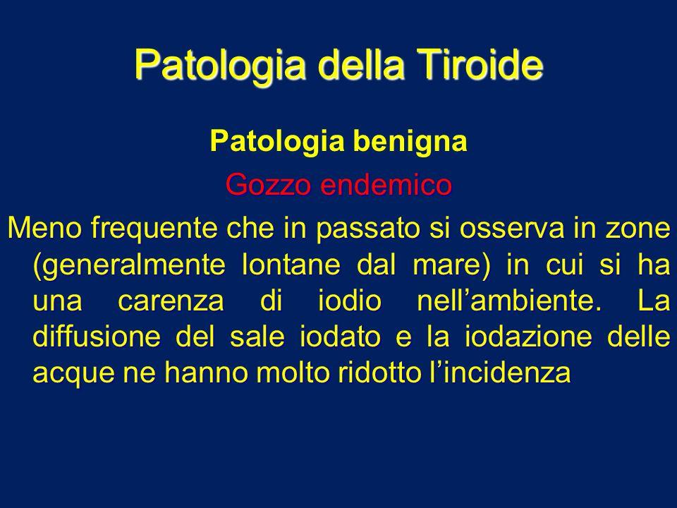 Patologia della Tiroide Patologia benigna Gozzo endemico Meno frequente che in passato si osserva in zone (generalmente lontane dal mare) in cui si ha