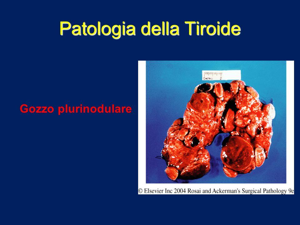 Patologia della Tiroide Gozzo plurinodulare