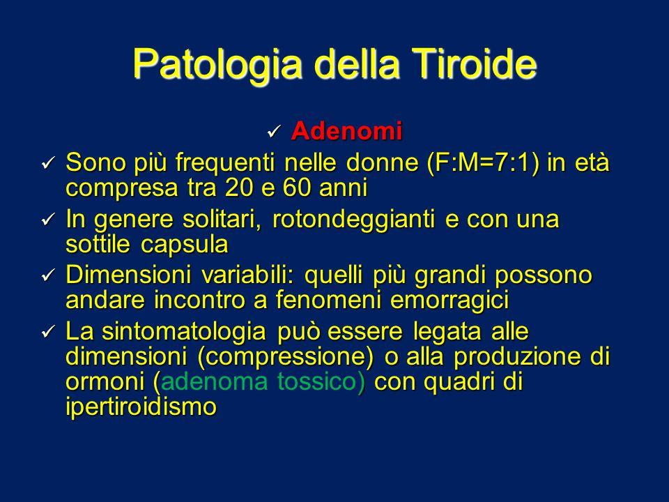 Patologia della Tiroide Adenomi Adenomi Sono più frequenti nelle donne (F:M=7:1) in età compresa tra 20 e 60 anni Sono più frequenti nelle donne (F:M=