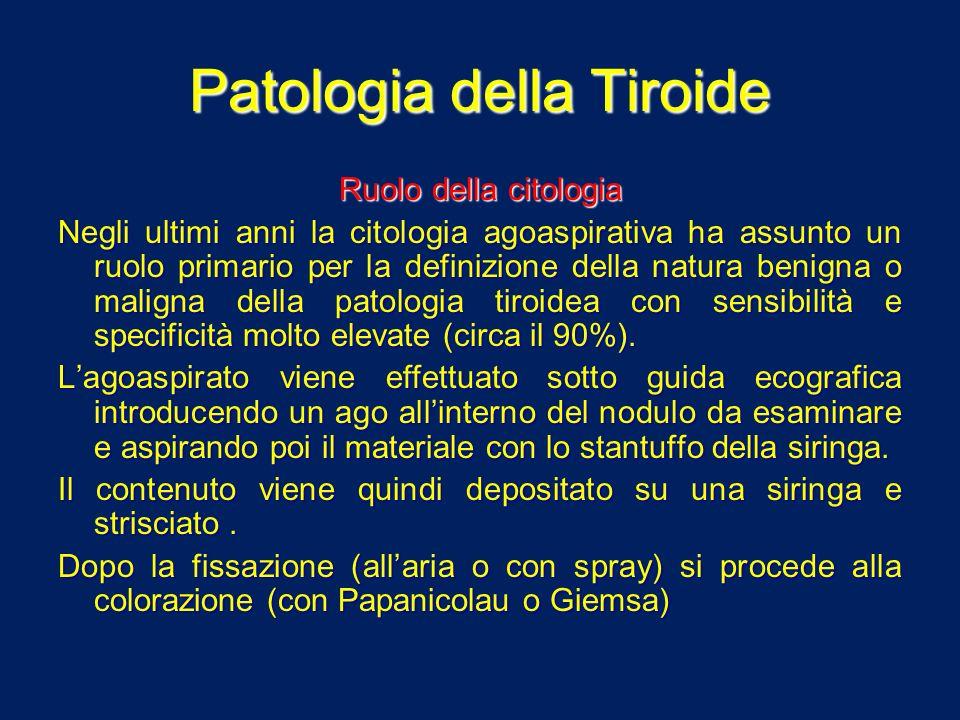 Patologia della Tiroide Neoplasie della tiroide Neoplasie benigne (adenomi) Neoplasie benigne (adenomi) Neoplasie maligne (carcinomi) Neoplasie maligne (carcinomi)