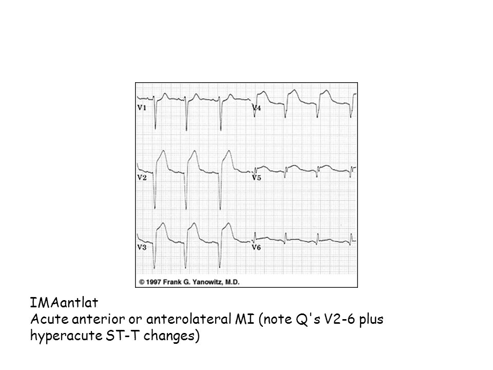 IMAantlat Acute anterior or anterolateral MI (note Q's V2-6 plus hyperacute ST-T changes)