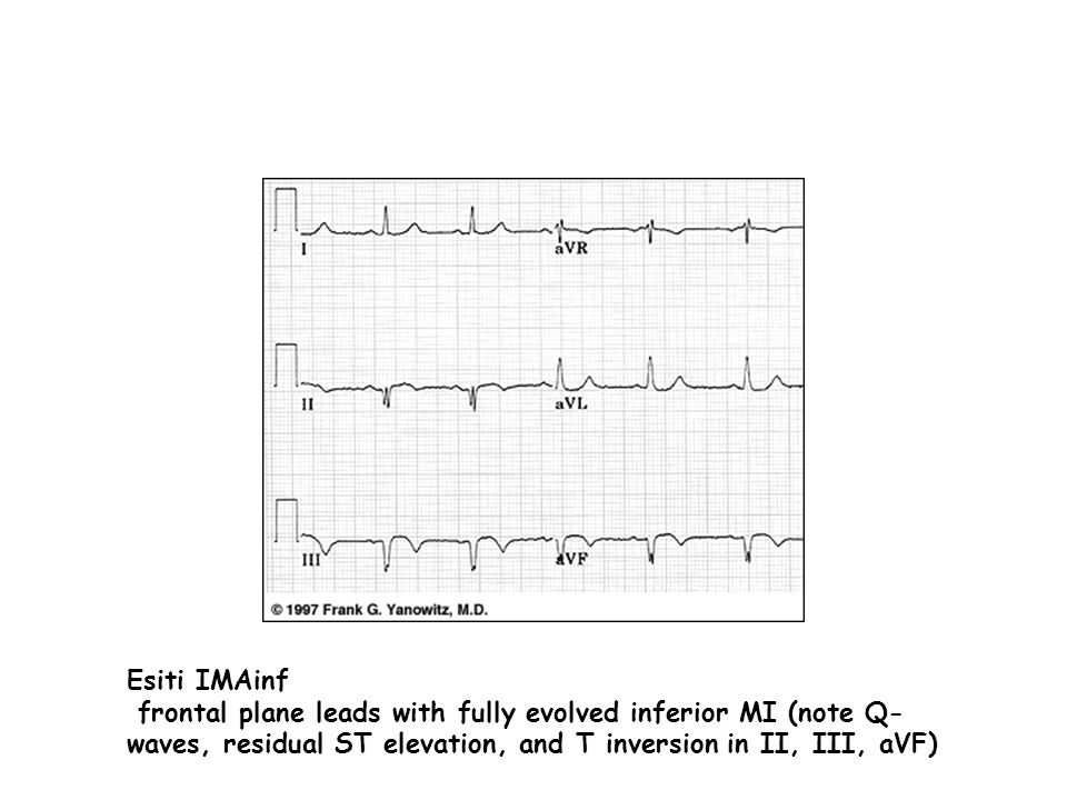 Esiti IMAinf frontal plane leads with fully evolved inferior MI (note Q- waves, residual ST elevation, and T inversion in II, III, aVF)