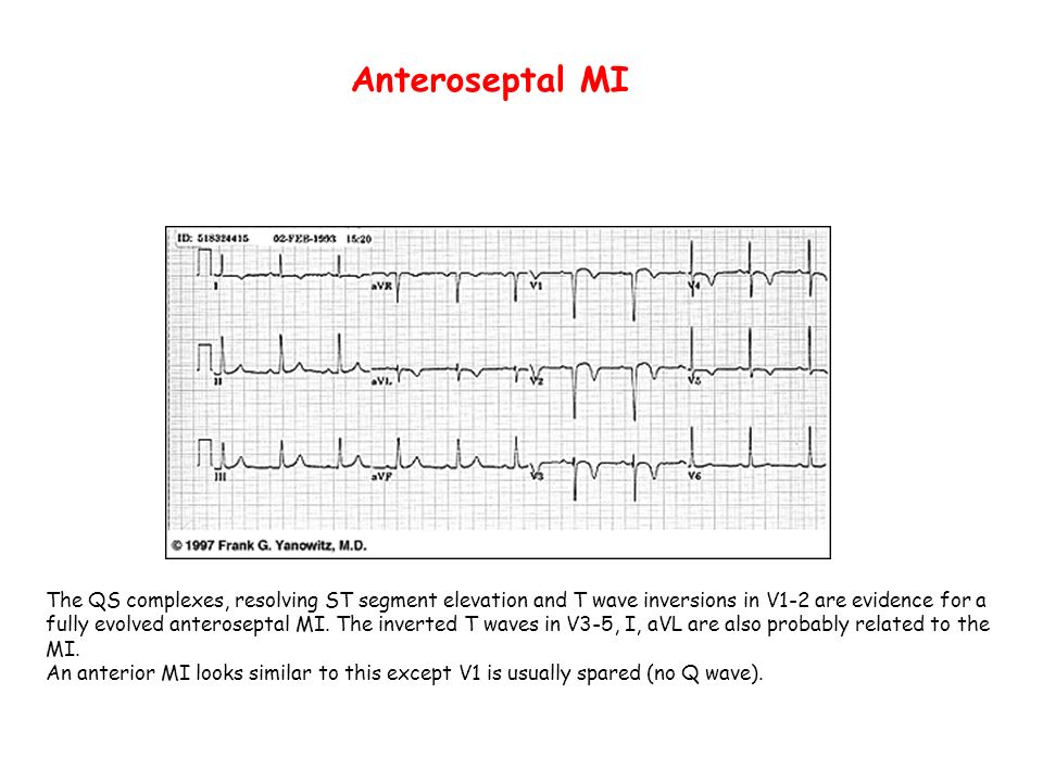Anteroseptal MI The QS complexes, resolving ST segment elevation and T wave inversions in V1-2 are evidence for a fully evolved anteroseptal MI. The i