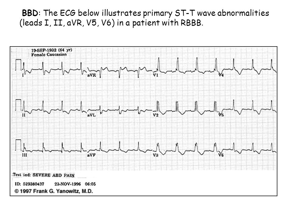 BBD: The ECG below illustrates primary ST-T wave abnormalities (leads I, II, aVR, V5, V6) in a patient with RBBB.